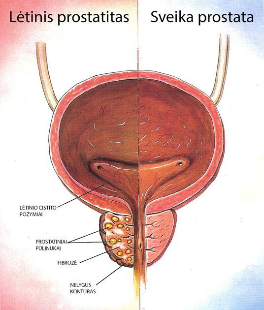 kaip akimirksniu sukelti erekciją kaip padidinti varpos namu pratimus