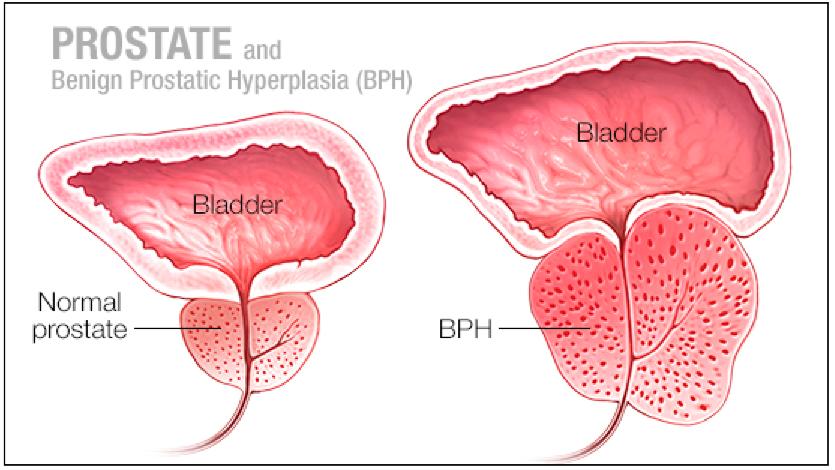 erekcijos susilpnėjimas ir prostatitas nario dydis