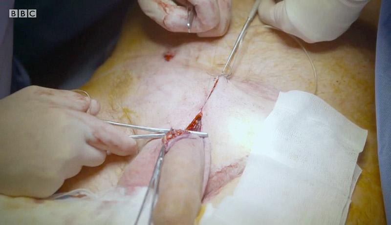 varpos prieš ir po operacijos metrų varpos