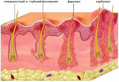 folikulai ant varpos iš kurios yra rytinė erekcija