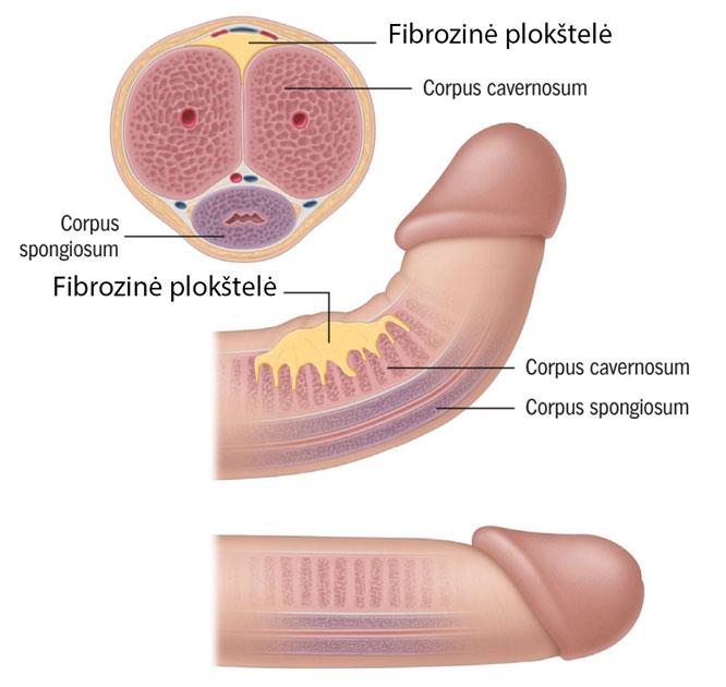 varpos erekcijos liga