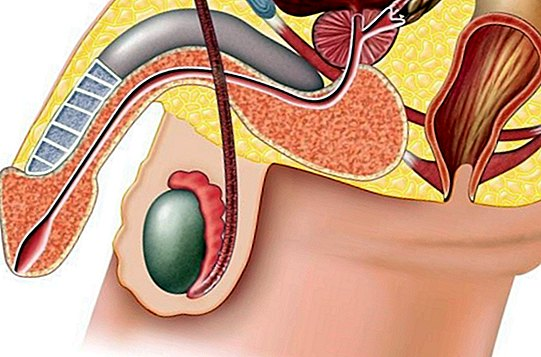 sėklidžių padidėjimas su erekcija kas galejo padidinti varpa