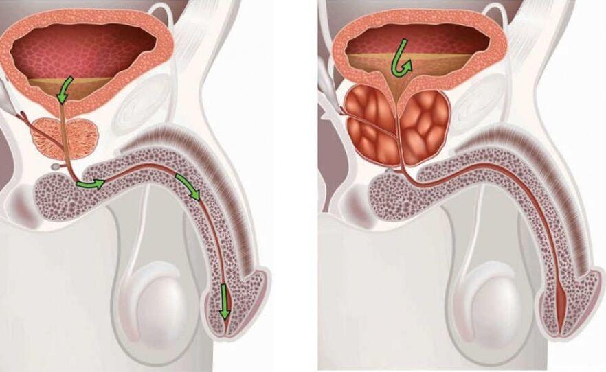 prostatos masažas veikia erekciją normalus varpos plotis erekcijos metu