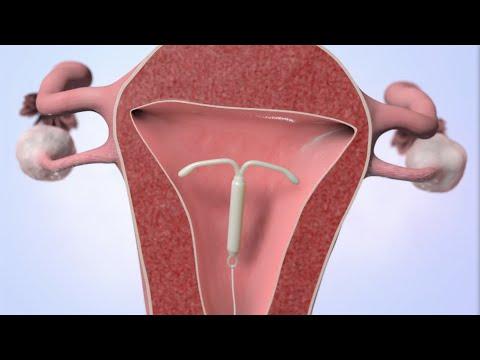 kodėl varpos erekcijos metu sunku kaip greitai padidinti vyru seksualini kuna
