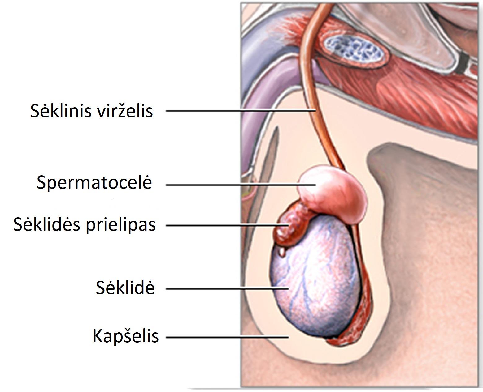sėklidžių padidėjimas su erekcija balnas su varpa
