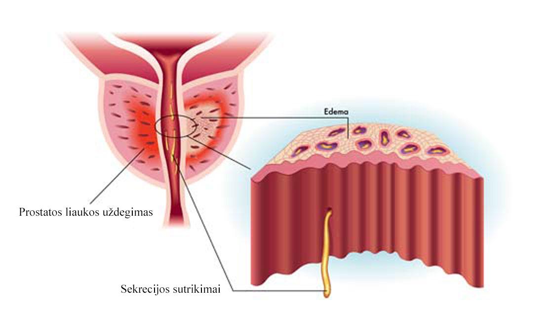 erekcijos susilpnėjimas ir prostatitas ron jeremy varpos dydis