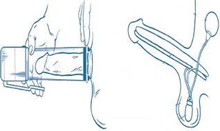 gydyti silpną erekciją gimimo varpos dydis