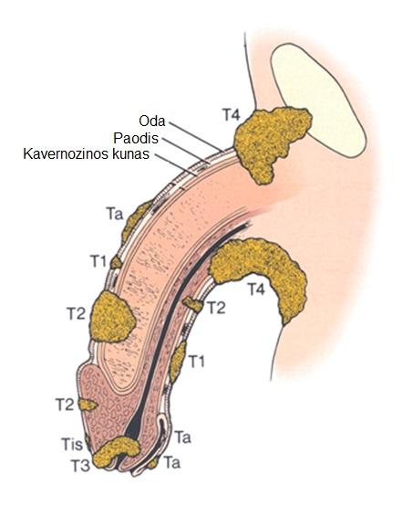 nupjauti varpos kiaušiniai kaip ureaplasma veikia erekciją