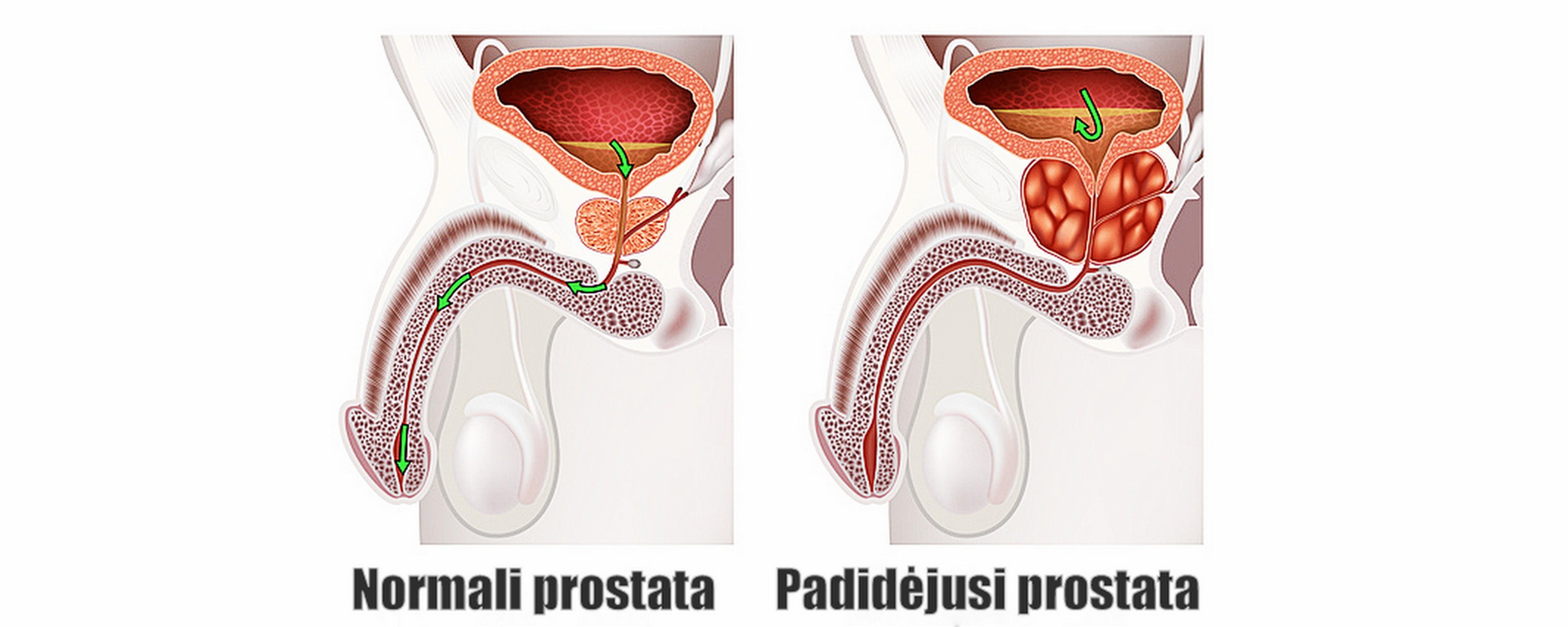 prostatos masažas veikia erekciją puikus storis ir nario ilgis
